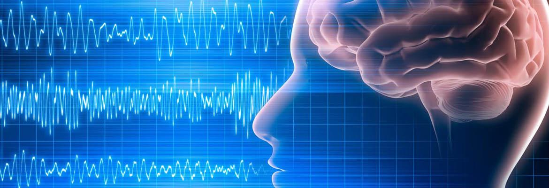 EEG 3